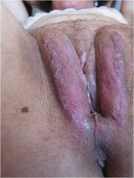 Анальний секс уреоплазмоз